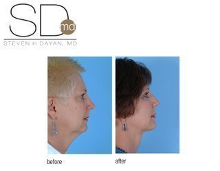 before and after of the day neck lift chicago