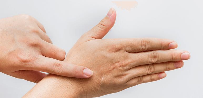 woman hand scar