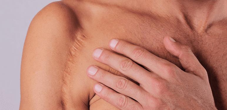 man scar