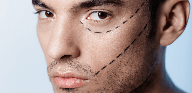 man cosmetic procedure