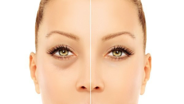 before after eye lift