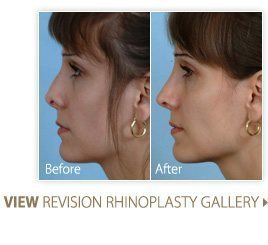 gallery-revision