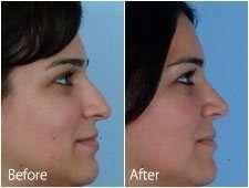 inline-Long-Nose-Rhinoplasty3