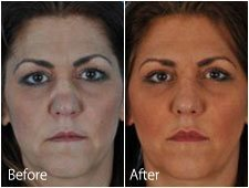 Rhinoplasty Common Conditions - Crooked Nose, Saddle Nose