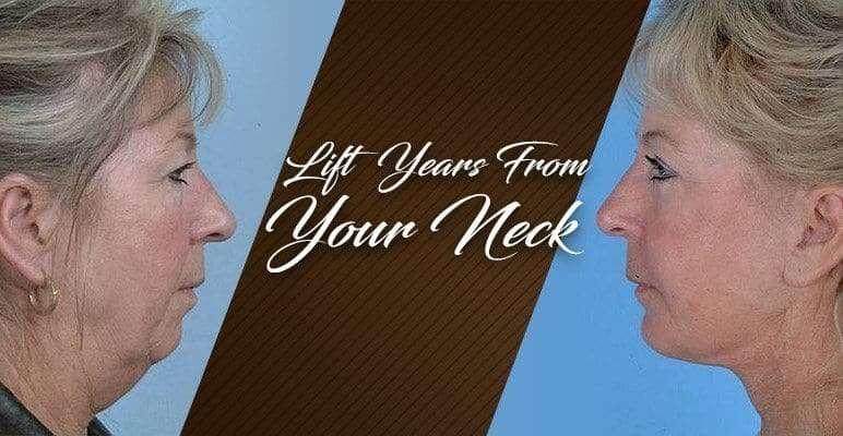 neck-lift