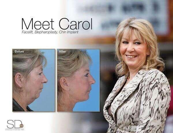 profile-carol-out