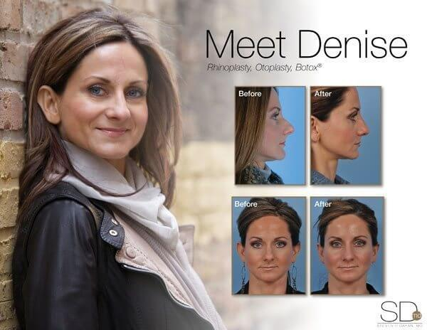 profile-denise-out (1)