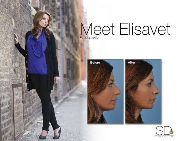 profile-elisavet-out