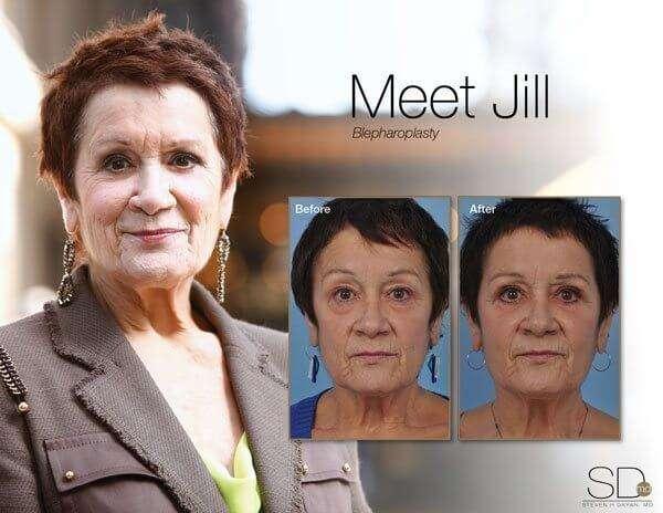 profile-jill-out