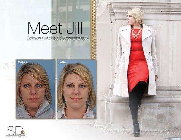 profile-jillp-out (1)