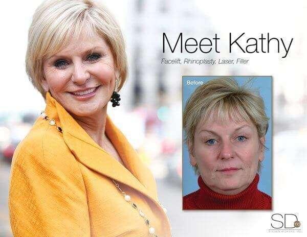 profile-kathy-out