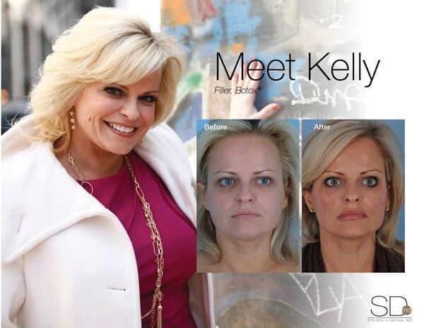 profile-kelly-out