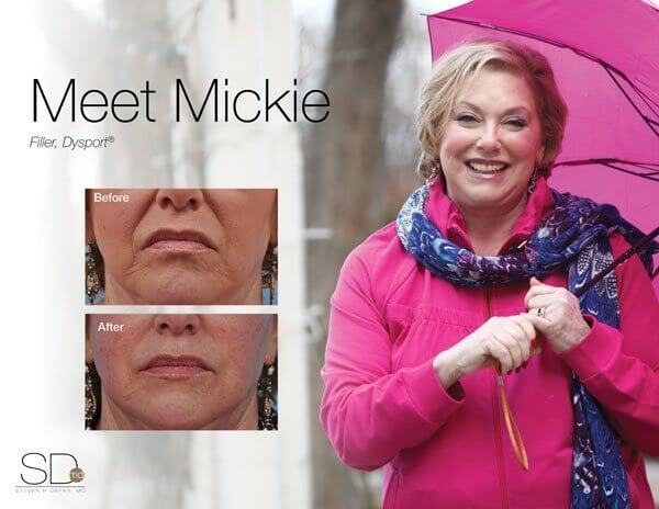 profile-mickie-out