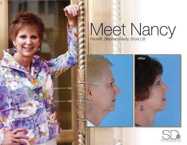 profile-nancy-out
