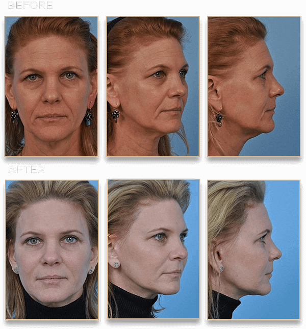 facelift, Look Years Younger After a Facelift