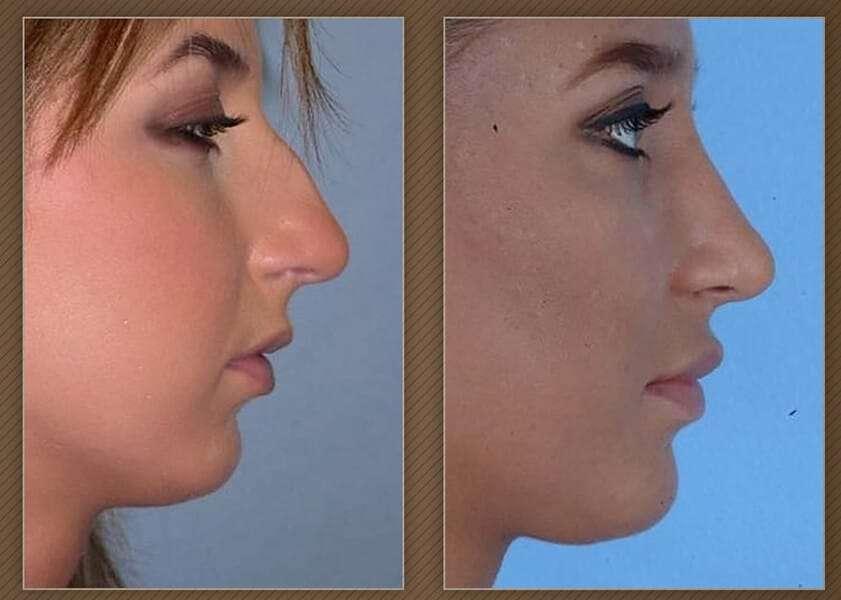 , Chin Implants