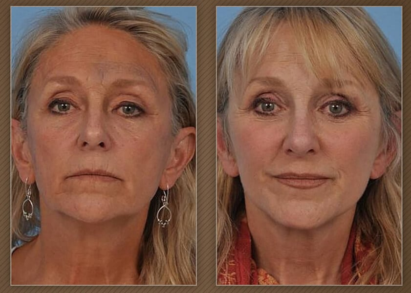 , Chicago Neck Lift Surgery