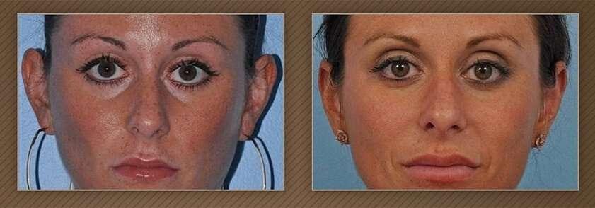 , Ear Surgery (Otoplasty)