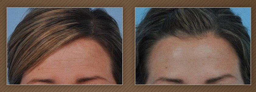 , Chicago Botox Cosmetic