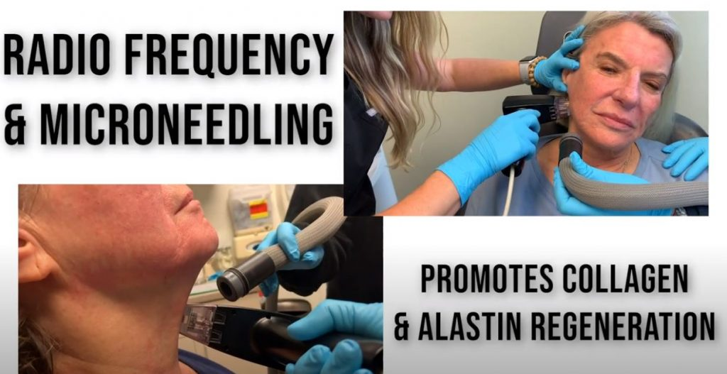chicago RF + microneedling treatment services
